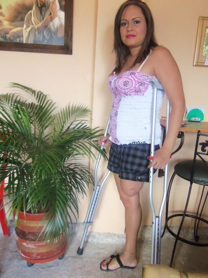 Legless Women Amputees http://ampwom.wordpress.com/2012/11/05/4652/